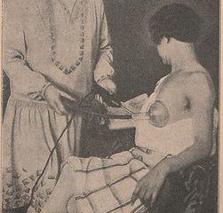 breast treatment - Copy.jpg