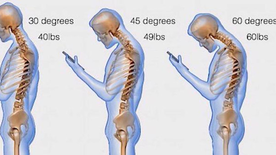 Neck Pain and Smart Phones