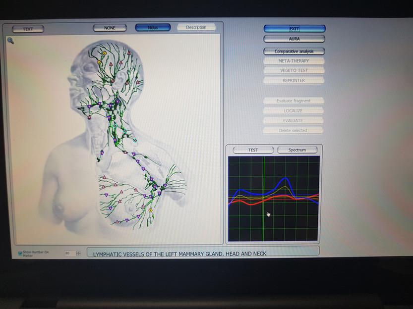 Bio Resonance Scan North Shore.jpg