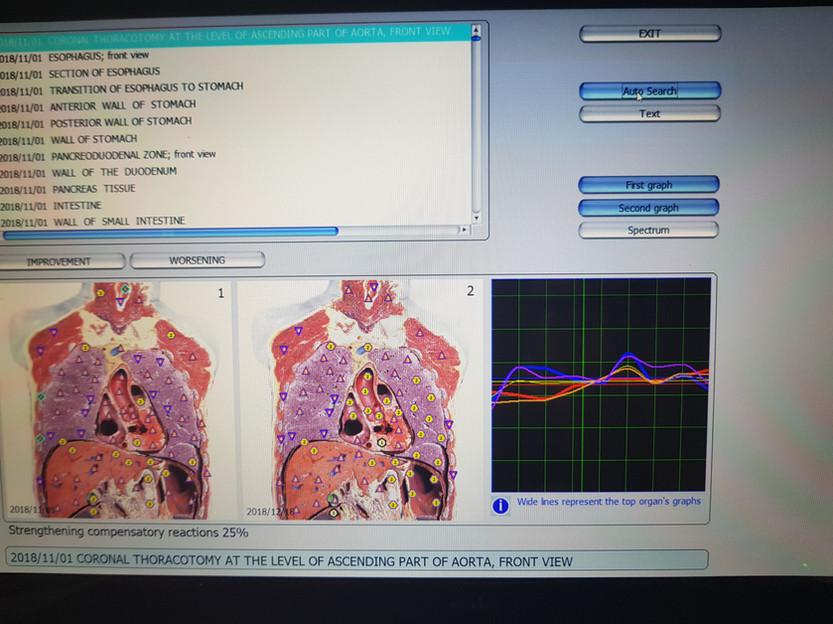 Bio Resonance Scan Albany.jpg