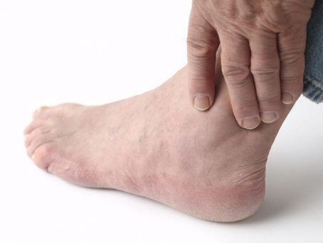 Top Tips to Combat Ankle Stiffness