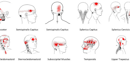 The Connection Between Neck Pain and Headaches
