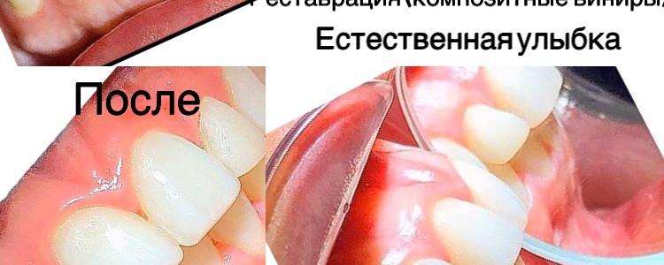 изображение_viщber_2020-03-01_15-08-33.j