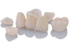Dental-Restoration-E-Max-Crown.jpg