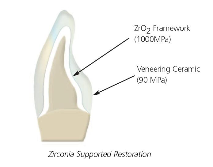 Zirconia Layer Illustration