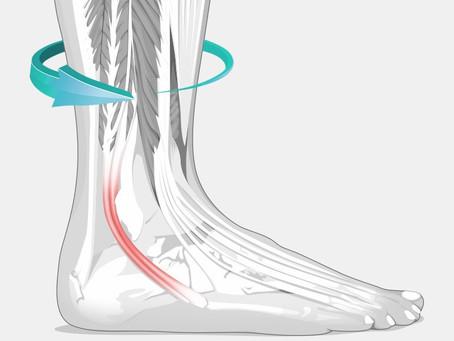 'Tis the Season For - High Ankle Sprains
