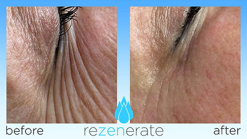 Before and after images of fine lines around eyes from Nano Facial