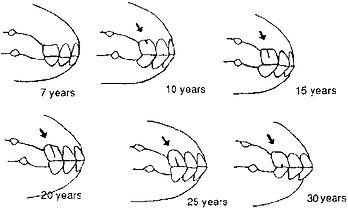 Horse Age by Teeth.jpg