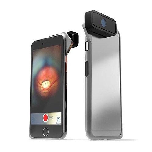 D-EYE Smartphone Retinal Screening