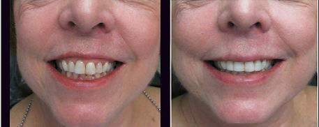 Laser Surgery Used to Whiten Teeth