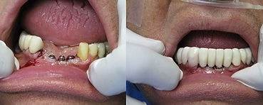 Paitent Before and After Implant Treatment
