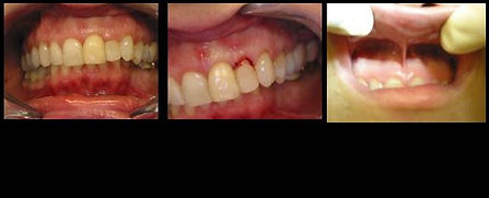 Laser Surgery Used to Lengthen the Crown of Tooth