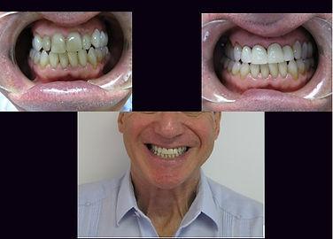 Full Mouth Rehabilitation Treatment