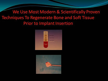 Bone Grafting Process