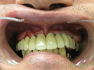 Patient After Full Mouth Rehabilitation