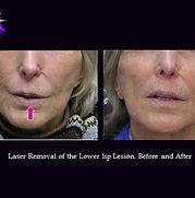 Biopsy of a Lip Lession