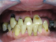 Patient Before FUll Mouth Rehabilitation