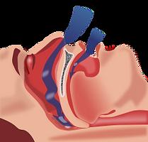 Nasal Airway Obstruction & Sleep Apnea