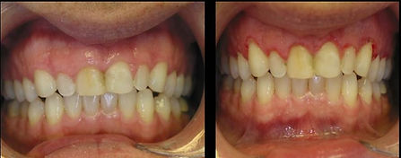Laser Surgery Used to Lengthen Crown by Removing Excess Gum Tissue