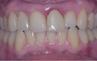 אסתטיקה שיניים