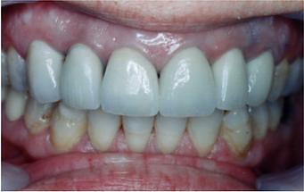 טיפול לאחר כתרים בפה