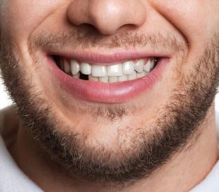 דוקטור, כבר איבדתי שיניים, אז מה עושים עכשיו?