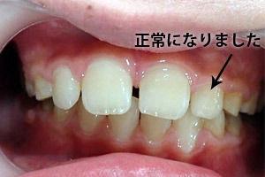 c_mouthpiece_case02_mae_a.jpg