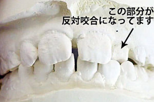 c_mouthpiece_case02_mae_b.jpg