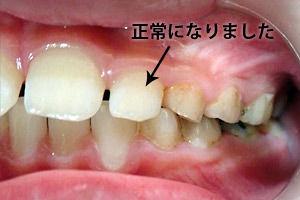 c_mouthpiece_case02_yoko_a.jpg