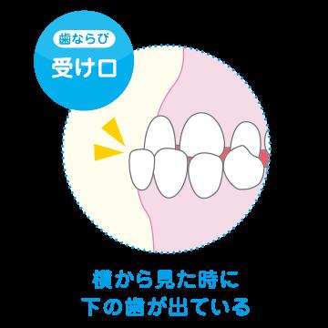 type_ukeguchi.png