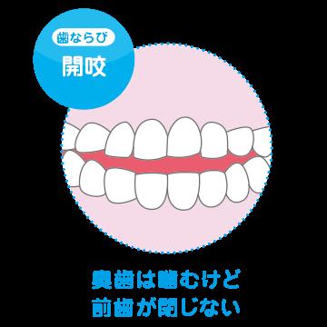 type_kaikou.png