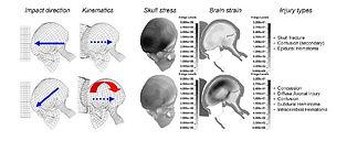 Concussion Research, Mild Traumaic Brain Injury