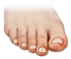 1_Ingrown-Toenail-300x247.jpg