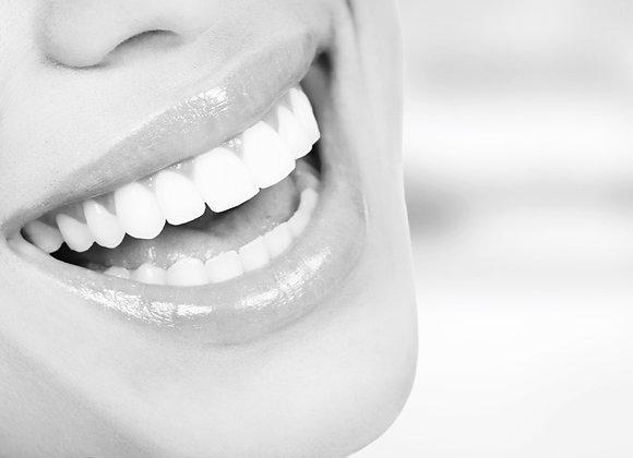 Blanchiment dentaire sans péroxyde