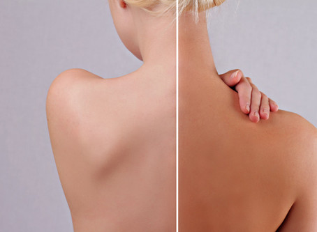 Le bronzage Tan : l'alternative aux UV !