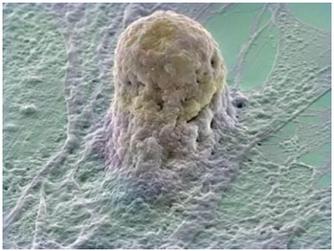 Etiologia da Doença Periodontal