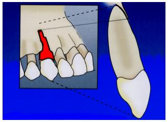 Cirurgia Periodontal Básica