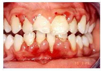 Doenças Sistêmicas com Manifestação no Periodonto