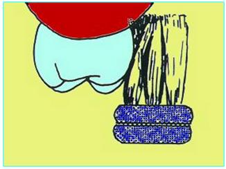 Mucosite e Perimplantite