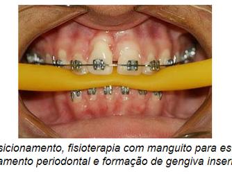 A inter-relação entre a Periodontia e as demais Especialidades