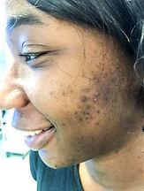 kemi acne.jpg