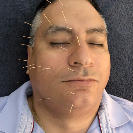 BELLS'S PALSY PHYSICAL THERAPY TREATMENTS.