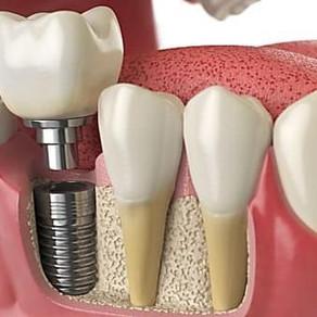Tot ce trebuie sa stii despre implantul dentar