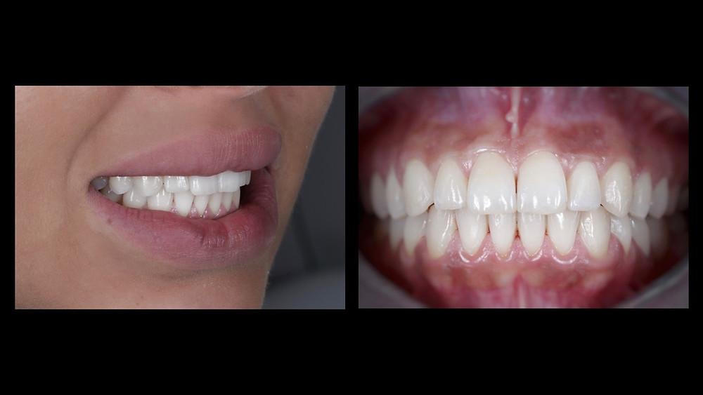 aparatul dentar invisalign lite