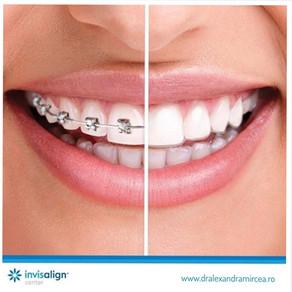 Top 5 diferente dintre aparatul dentar Invisalign si aparatele fixe