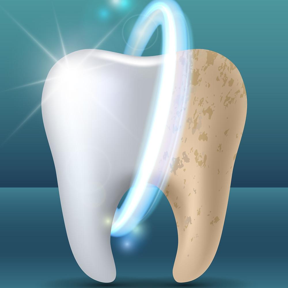 aspectul dintelui inainte si dupa indepartarea petelor care il coloreaza