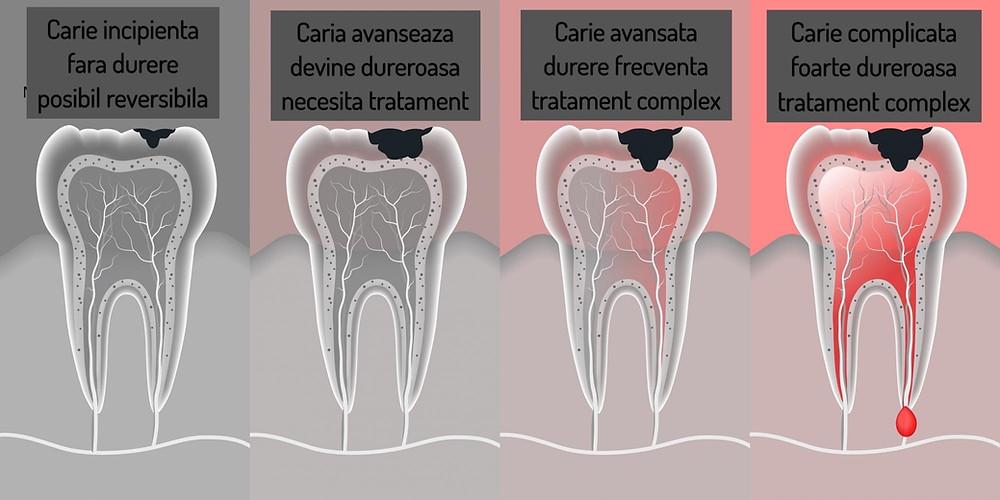 Stadiile cariei dentare, de la momentul reversibil pana la complicatii care pun in pericol dintele