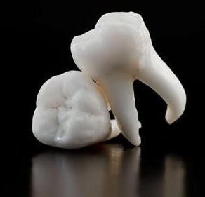 Chiar trebuie să extrag molarii de minte?