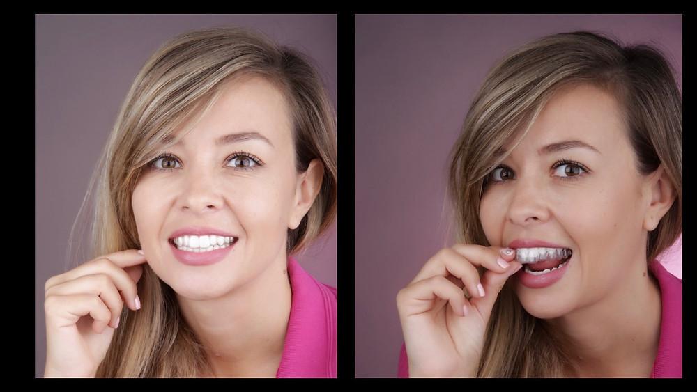 Atat de transparent incat nici nu se observa ca îl porti - aparatul dentar Invisalign