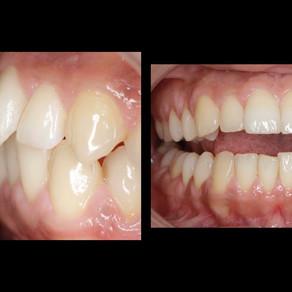 Rezultate uimitoare cu aparatul dentar Invisalign Lite